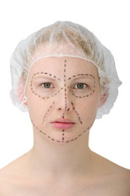 Woman Facelift Markings